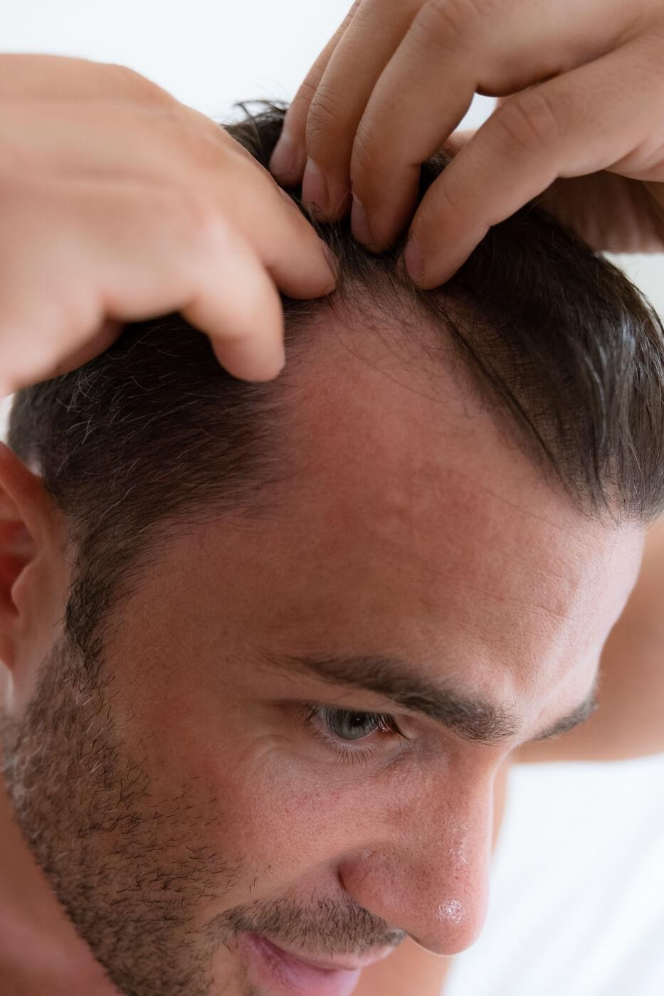 hair cure efekty